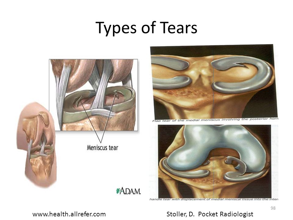 Types of Tears www.health.allrefer.com Stoller, D. Pocket Radiologist