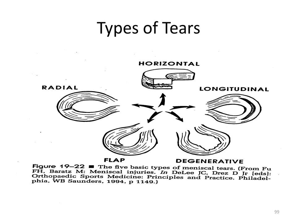 Types of Tears
