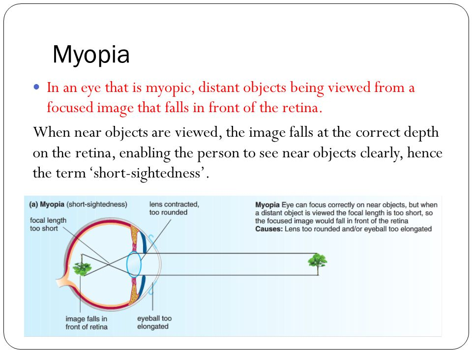 Myopia In an eye that is myopic, distant objects being viewed from a focused image that falls in front of the retina.