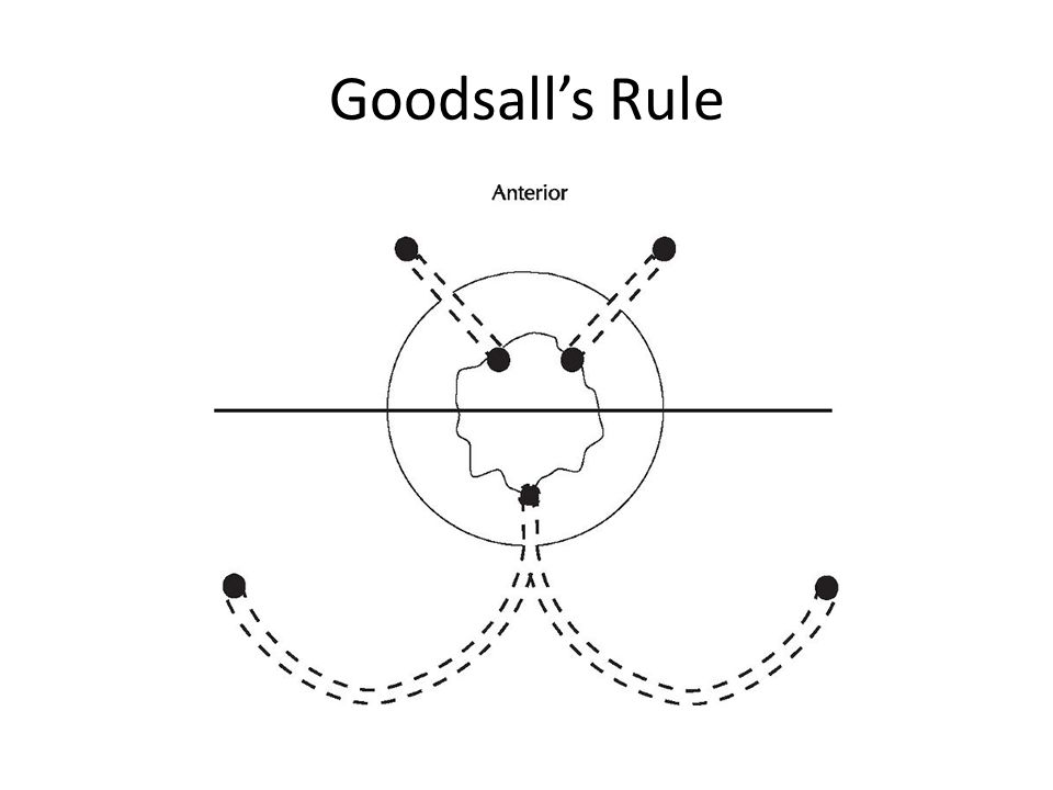 Goodsall's Rule Goodsall s rule generally applies in that the likely site of the internal opening.