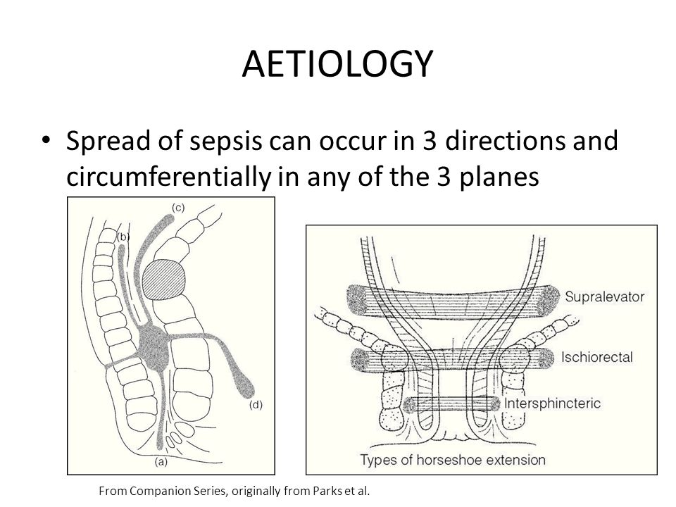 AETIOLOGY Spread of sepsis can occur in 3 directions and circumferentially in any of the 3 planes. A = caudal  perianal abscess.
