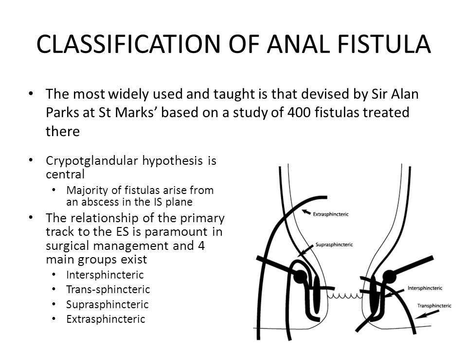 CLASSIFICATION OF ANAL FISTULA