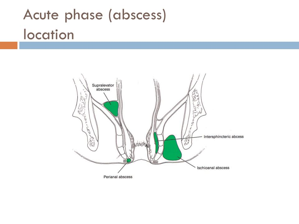 Acute phase (abscess) location