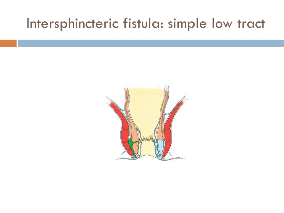 Intersphincteric fistula: simple low tract