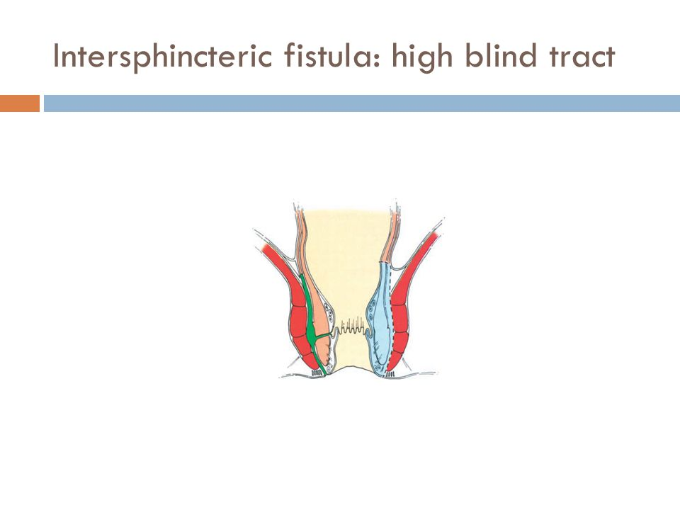 Intersphincteric fistula: high blind tract