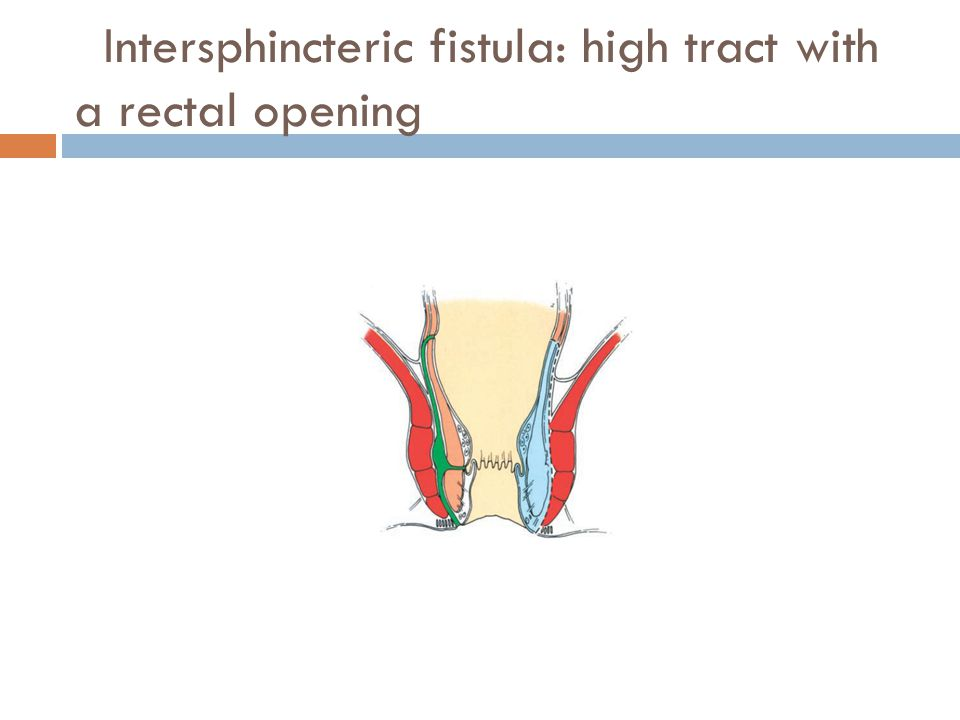 Intersphincteric fistula: high tract with a rectal opening