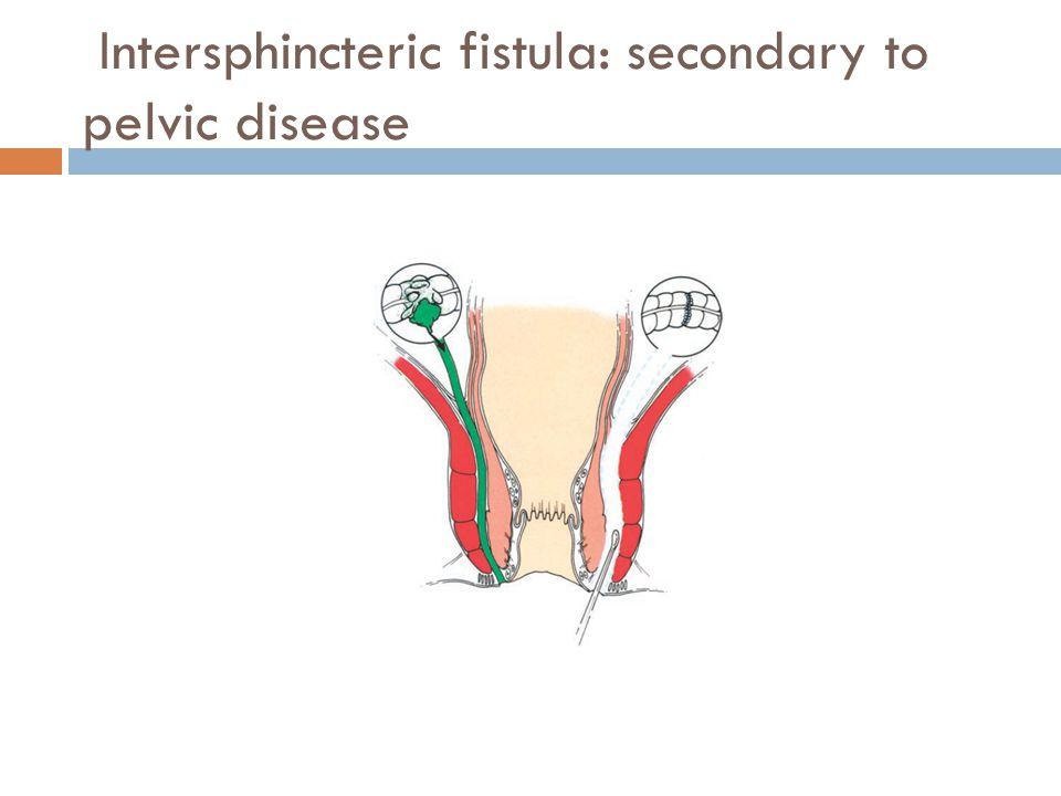 Intersphincteric fistula: secondary to pelvic disease