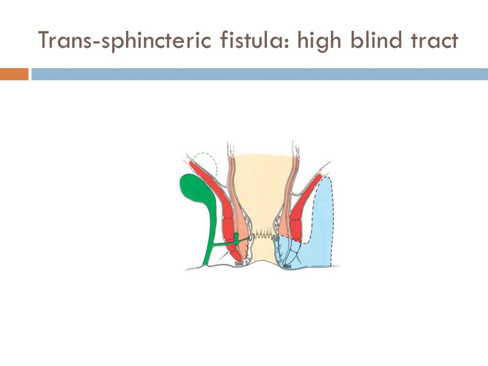 Trans-sphincteric fistula: high blind tract