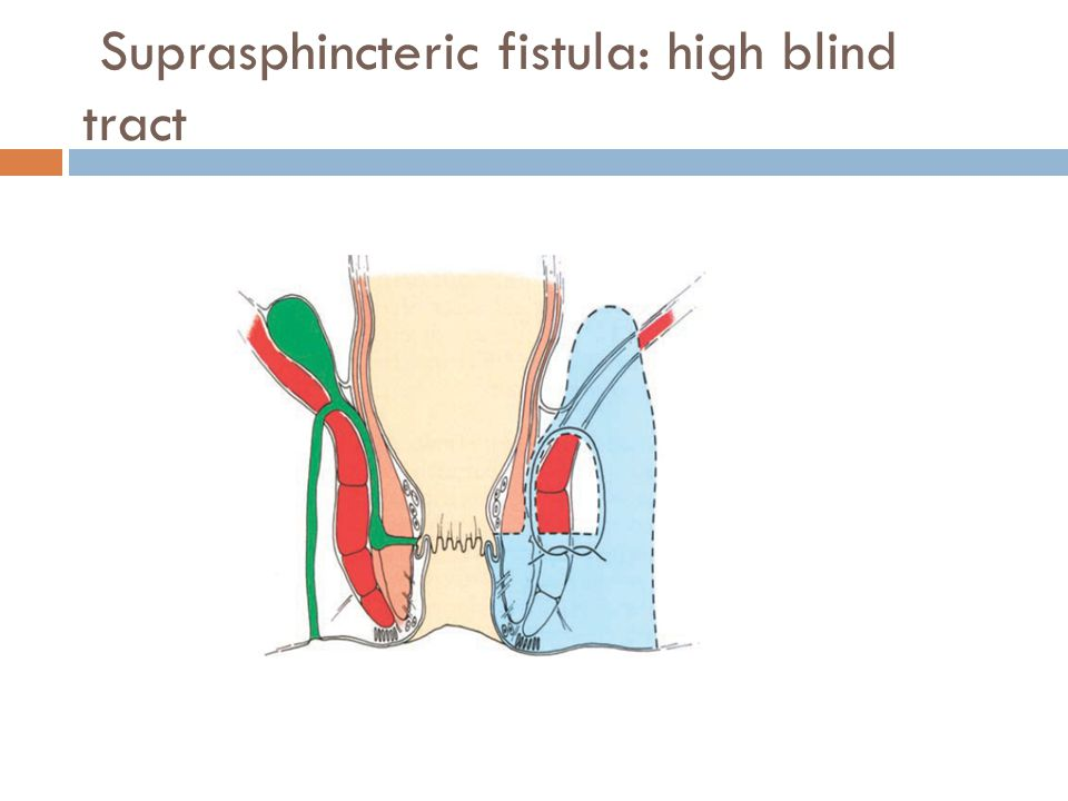 Suprasphincteric fistula: high blind tract