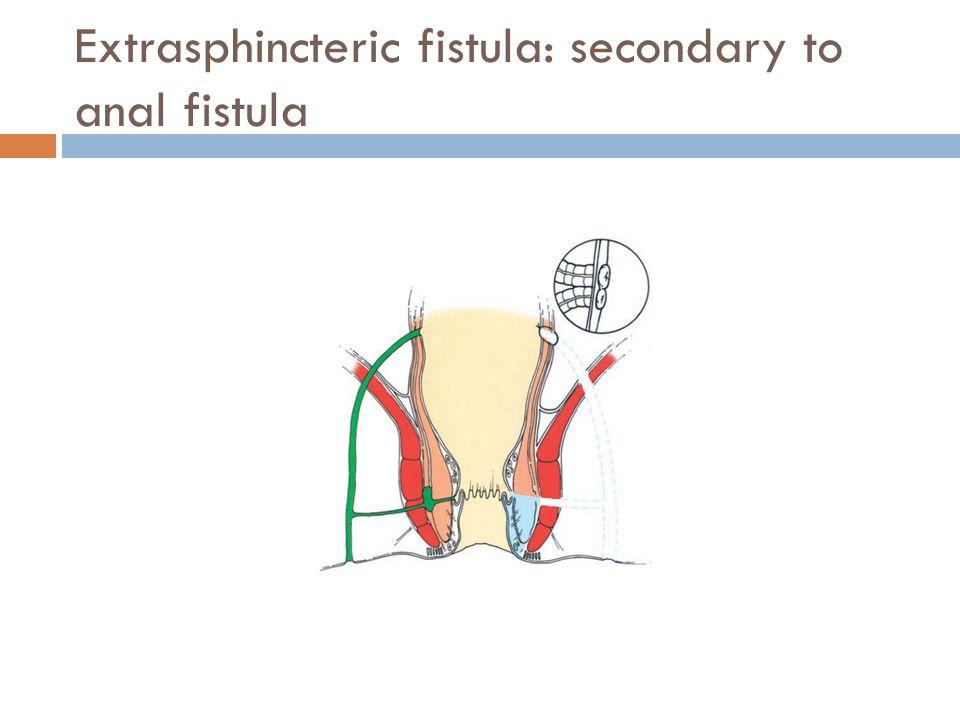 Extrasphincteric fistula: secondary to anal fistula
