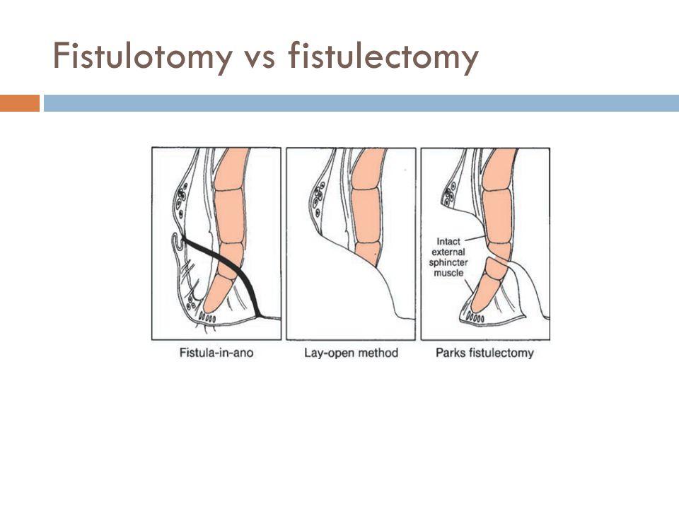 Fistulotomy vs fistulectomy
