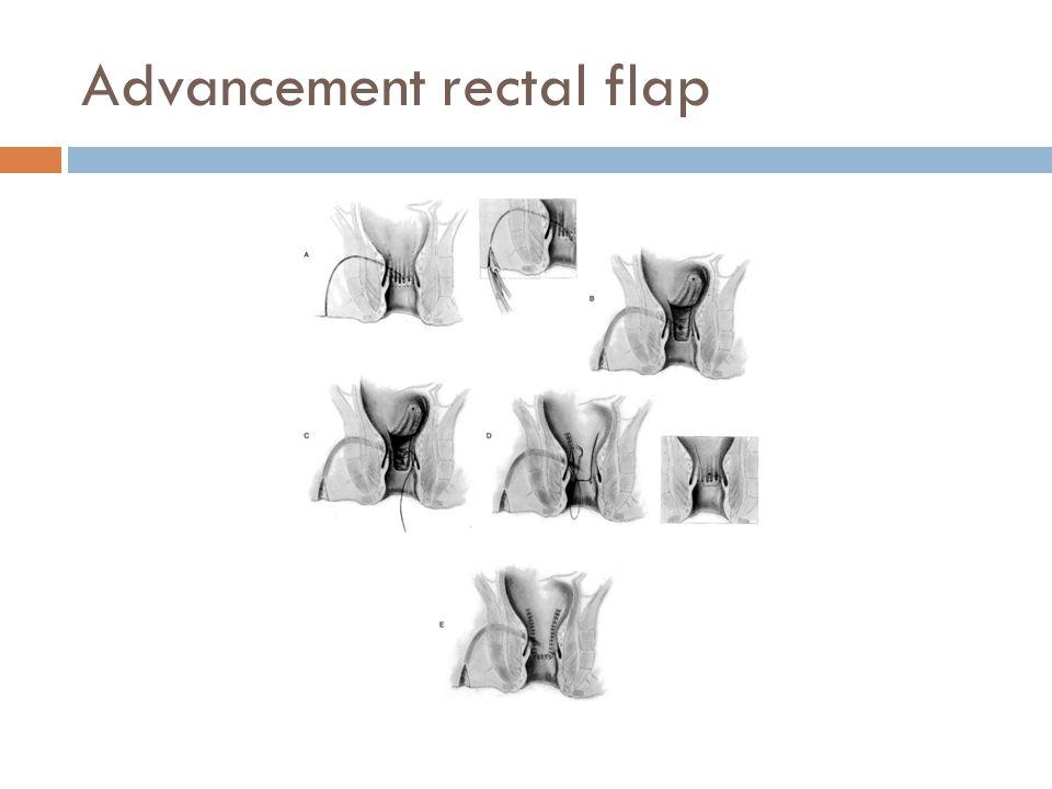 Advancement rectal flap