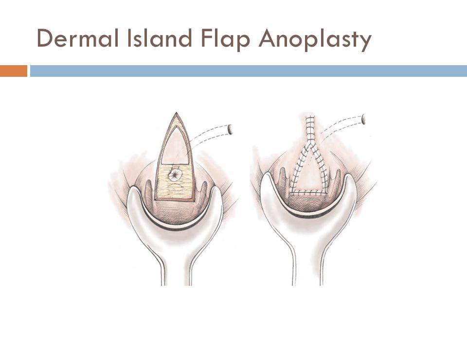 Dermal Island Flap Anoplasty