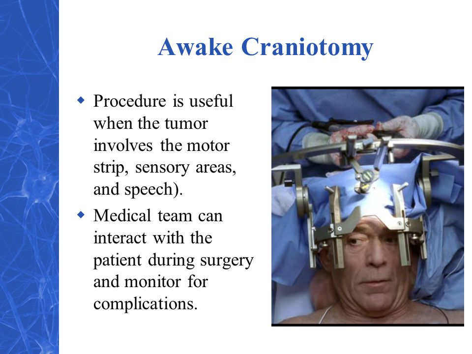 Awake Craniotomy Procedure is useful when the tumor involves the motor strip, sensory areas, and speech).