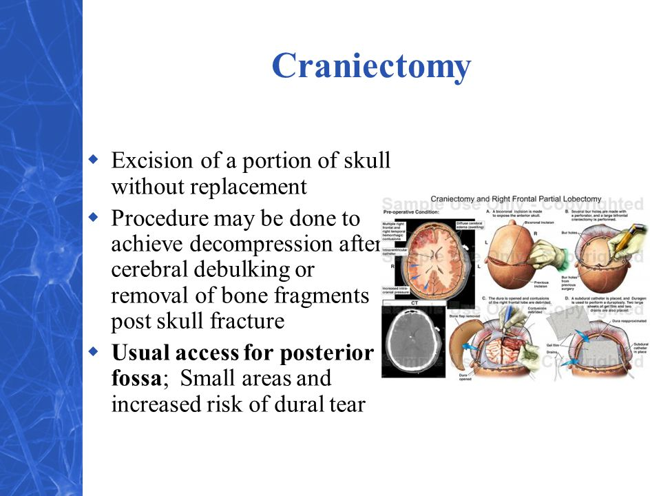 Craniectomy Excision of a portion of skull without replacement