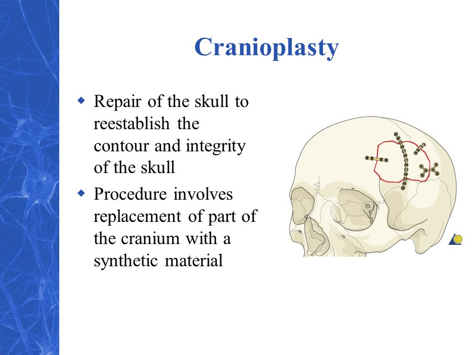 Cranioplasty Repair of the skull to reestablish the contour and integrity of the skull.