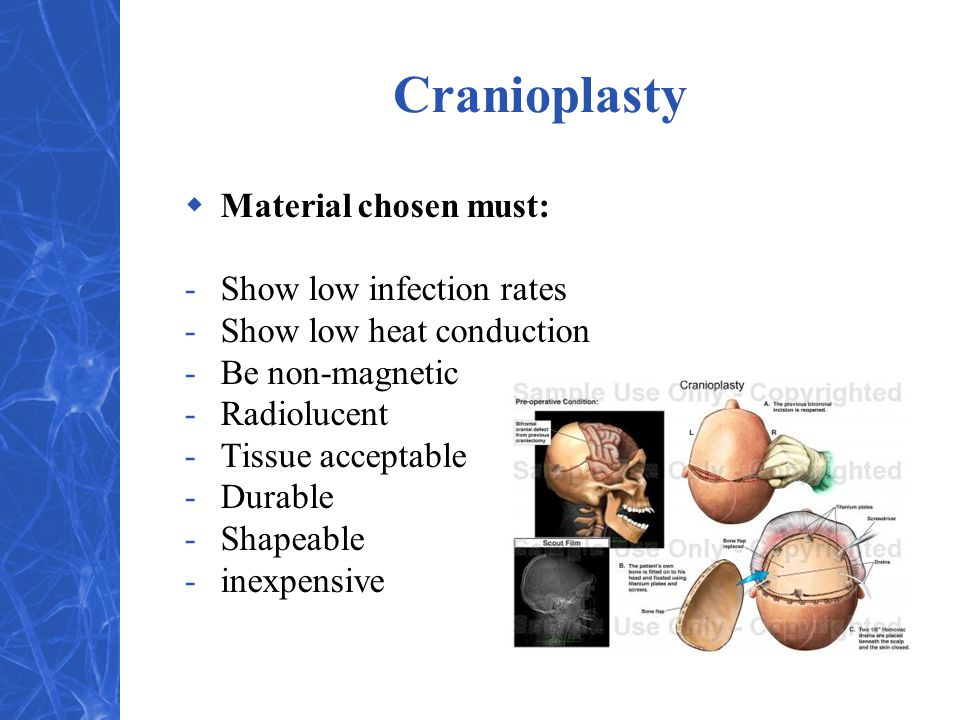 Cranioplasty Material chosen must: Show low infection rates
