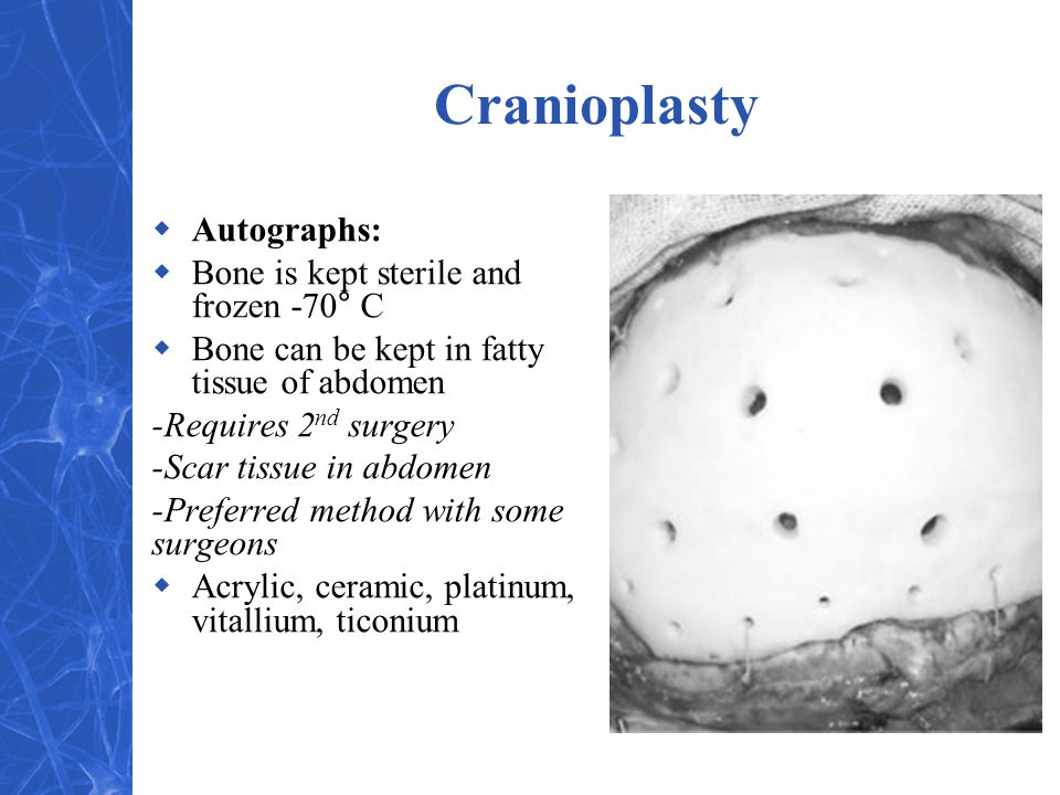 Cranioplasty Autographs: Bone is kept sterile and frozen -70° C