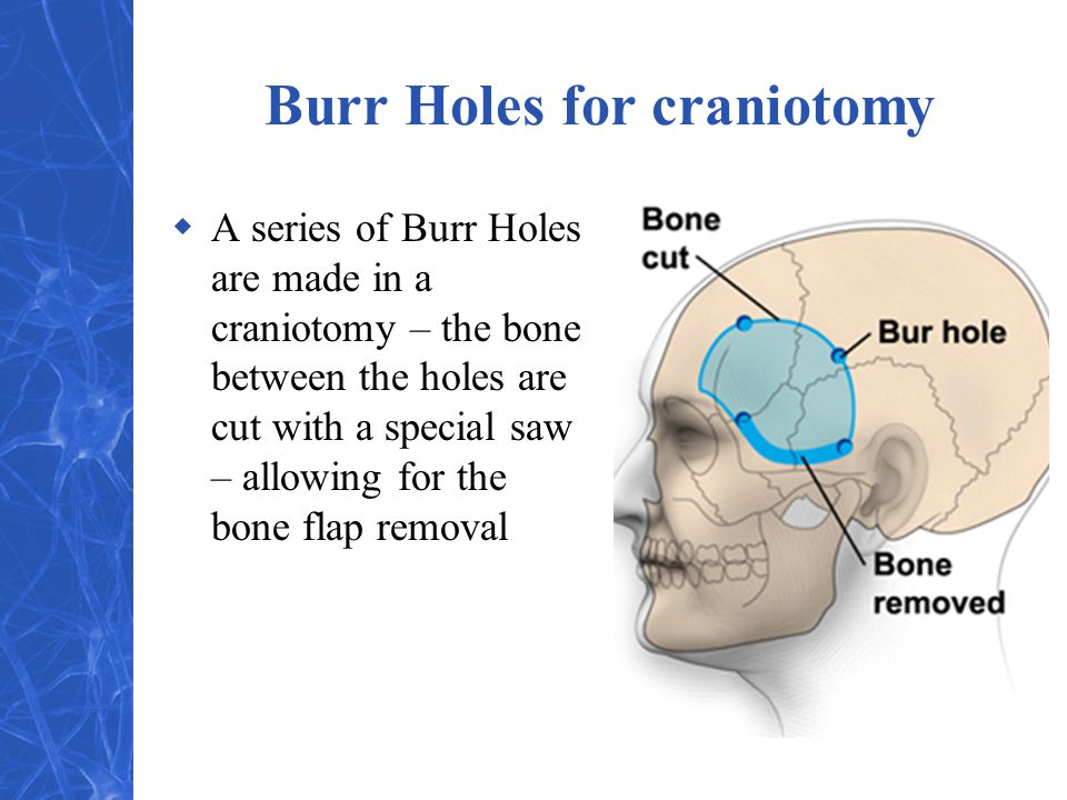 Burr Holes for craniotomy