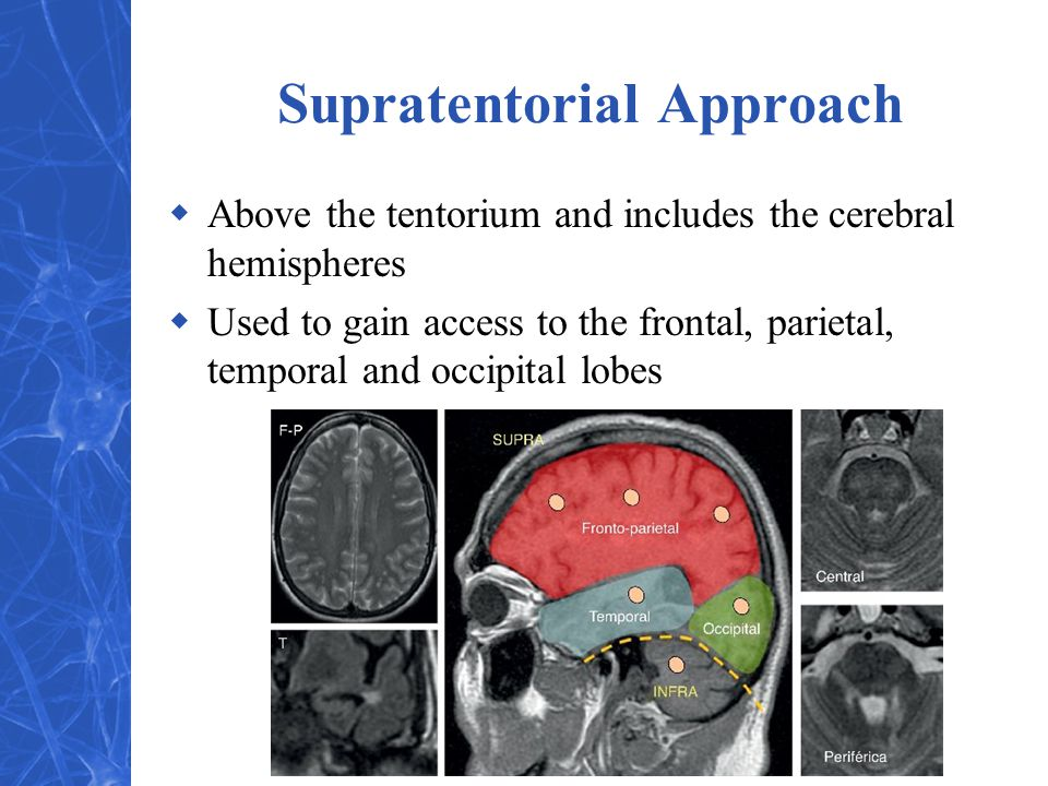 Supratentorial Approach
