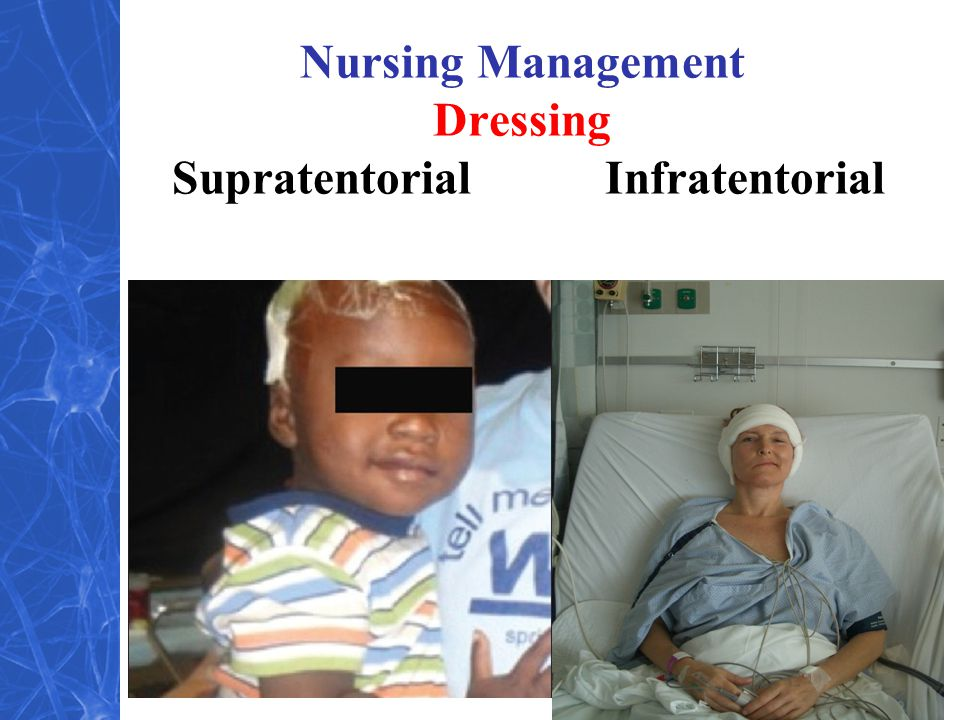 Nursing Management Dressing Supratentorial Infratentorial