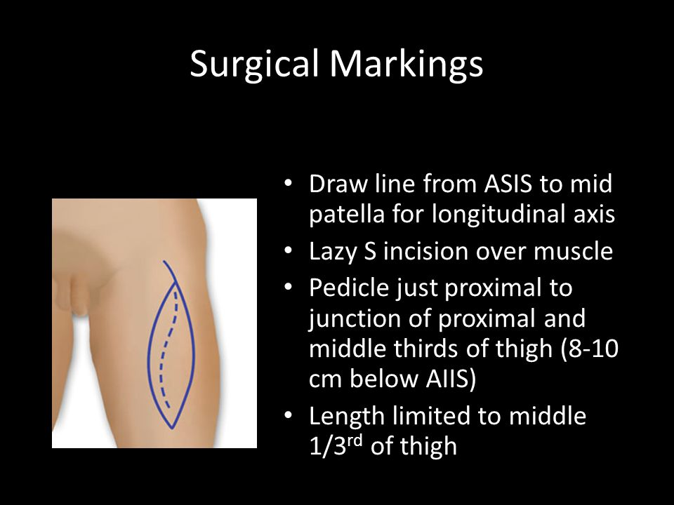 Surgical Markings Draw line from ASIS to mid patella for longitudinal axis. Lazy S incision over muscle.