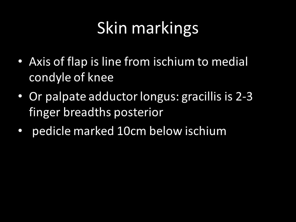 Skin markings Axis of flap is line from ischium to medial condyle of knee. Or palpate adductor longus: gracillis is 2-3 finger breadths posterior.