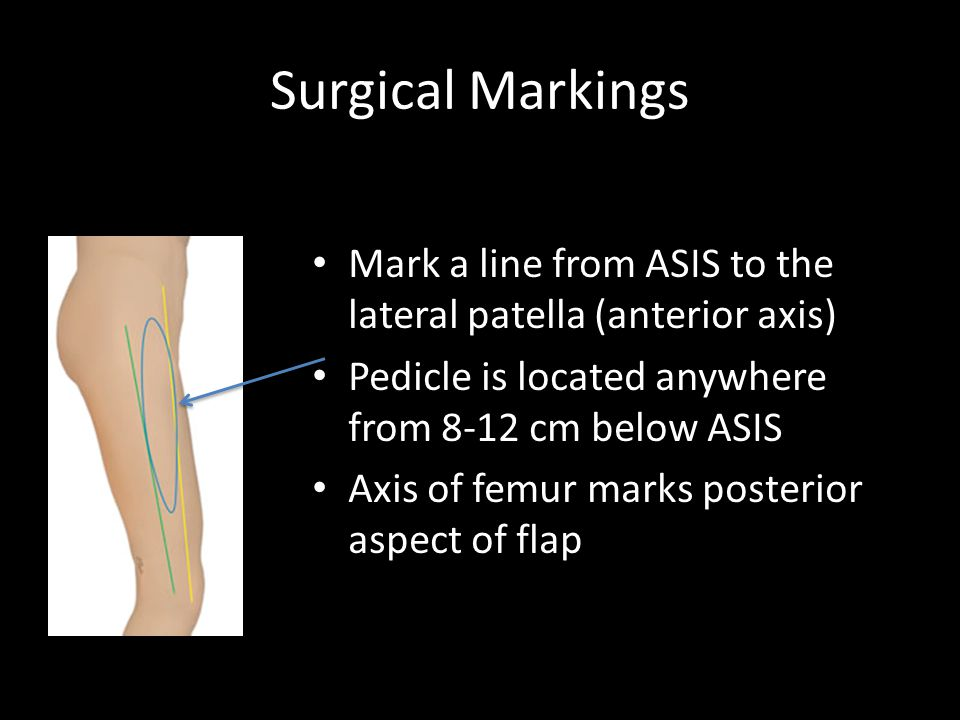 Surgical Markings Mark a line from ASIS to the lateral patella (anterior axis) Pedicle is located anywhere from 8-12 cm below ASIS.
