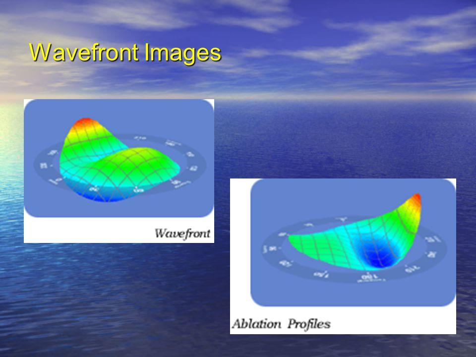 Wavefront Images