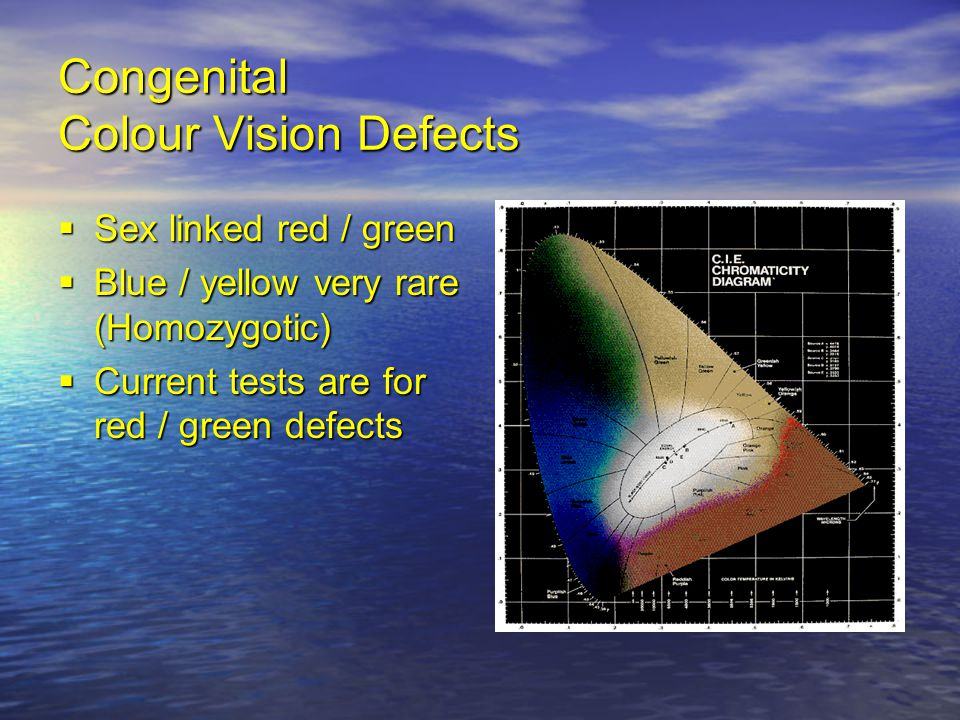 Congenital Colour Vision Defects