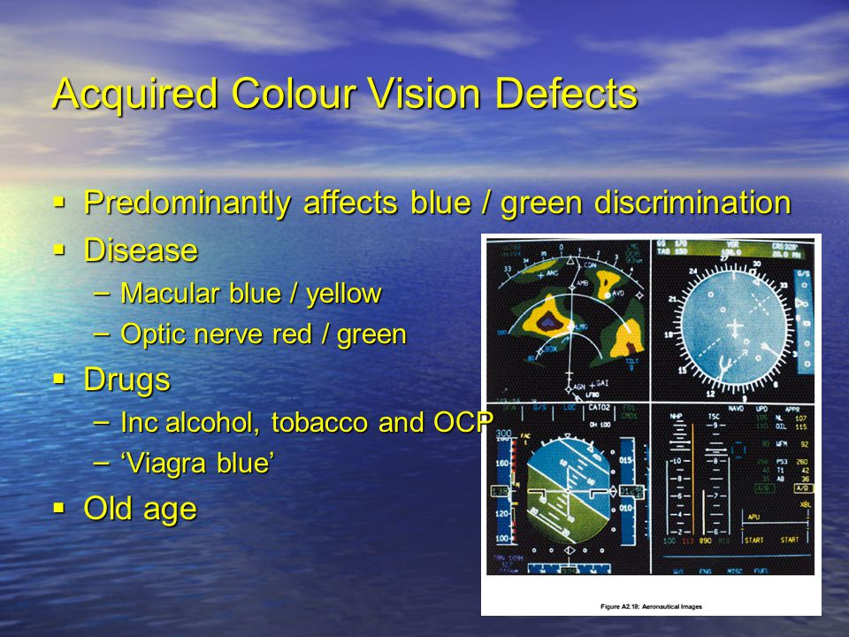 Acquired Colour Vision Defects