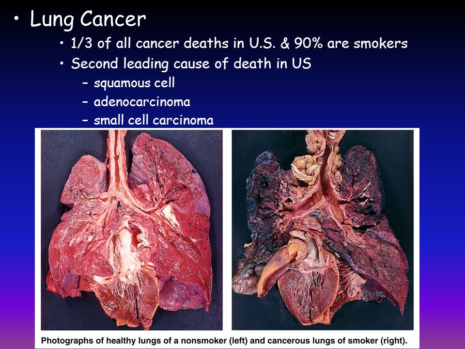 Lung Cancer 1/3 of all cancer deaths in U.S. & 90% are smokers