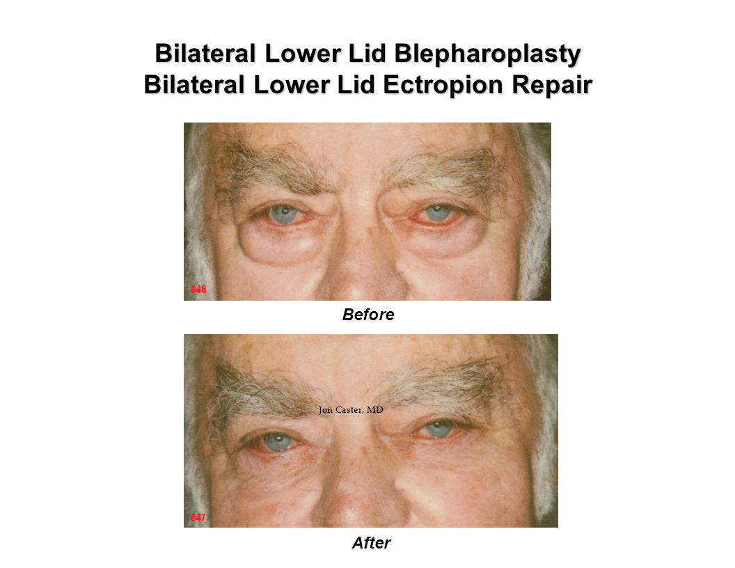 Bilateral Lower Lid Blepharoplasty