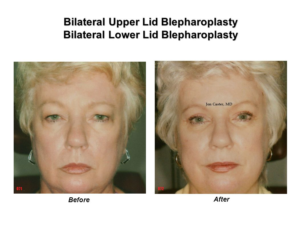 Bilateral Upper Lid Blepharoplasty Bilateral Lower Lid Blepharoplasty