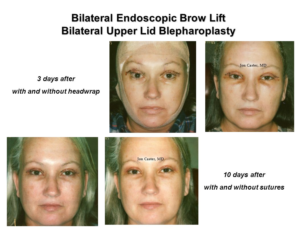 Bilateral Endoscopic Brow Lift Bilateral Upper Lid Blepharoplasty