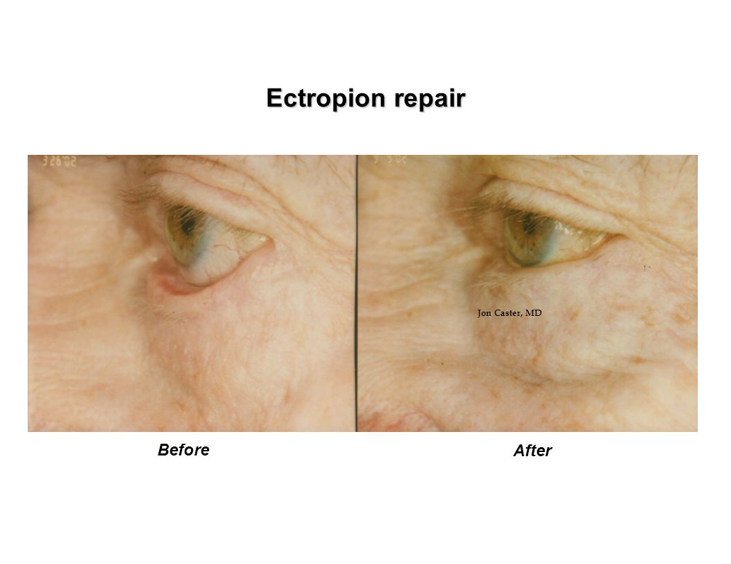 Ectropion repair Jon Caster, MD Before After