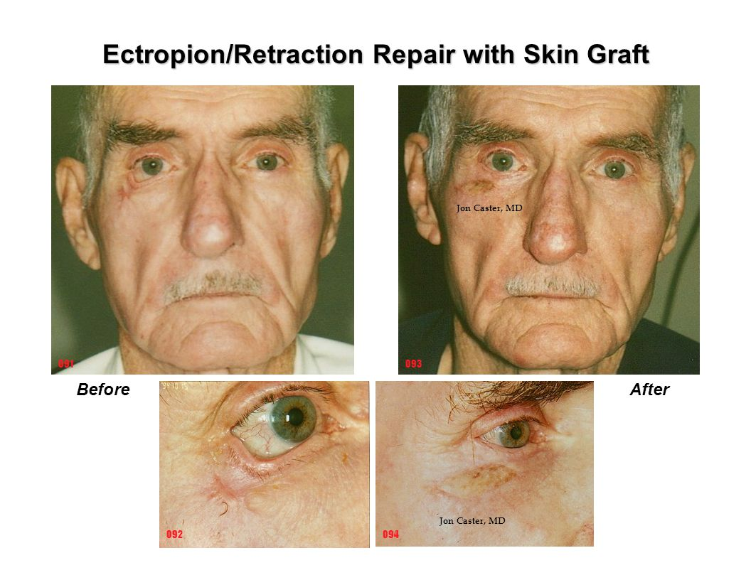 Ectropion/Retraction Repair with Skin Graft