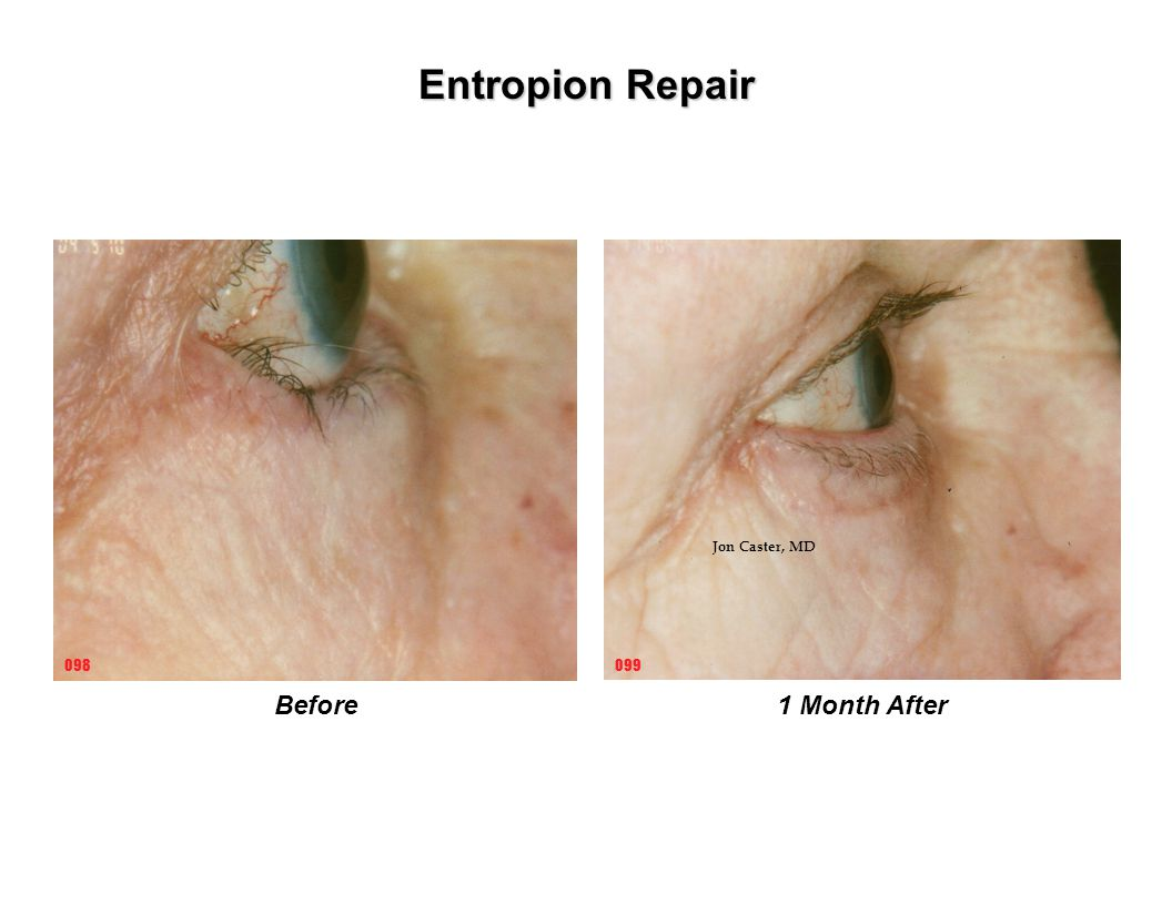 Entropion Repair Jon Caster, MD 098 099 Before 1 Month After