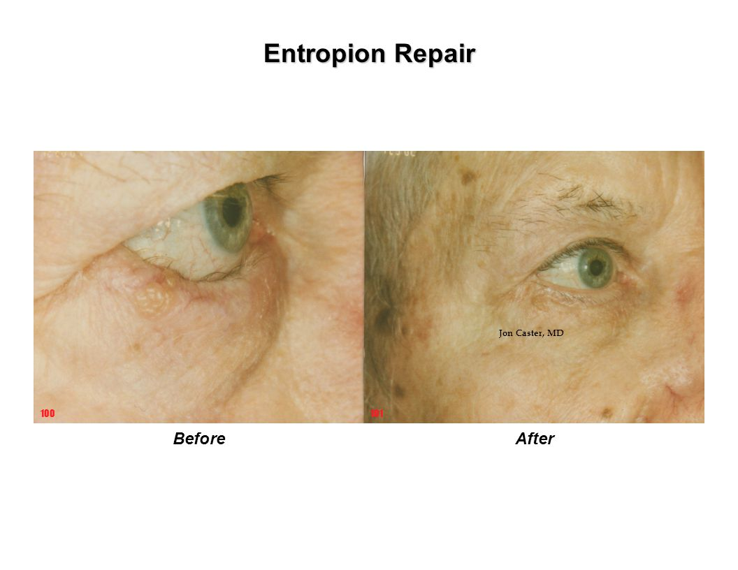 Entropion Repair Jon Caster, MD 100 101 Before After