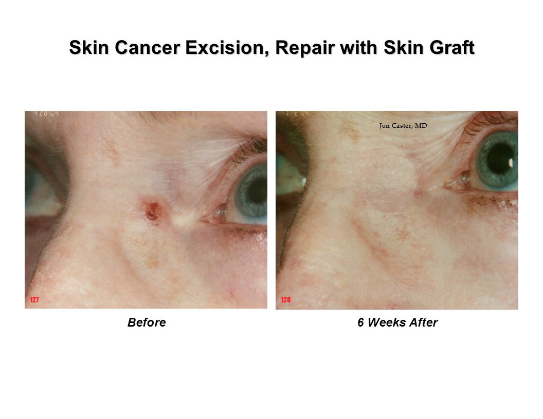Skin Cancer Excision, Repair with Skin Graft