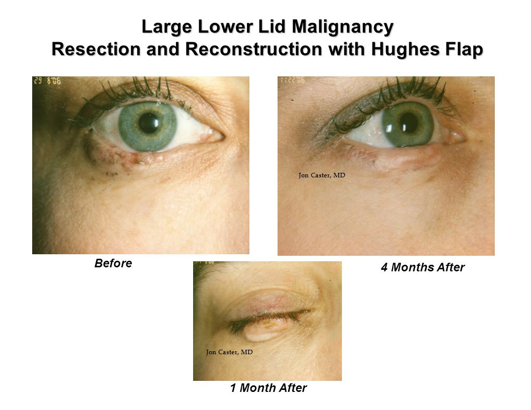 Large Lower Lid Malignancy