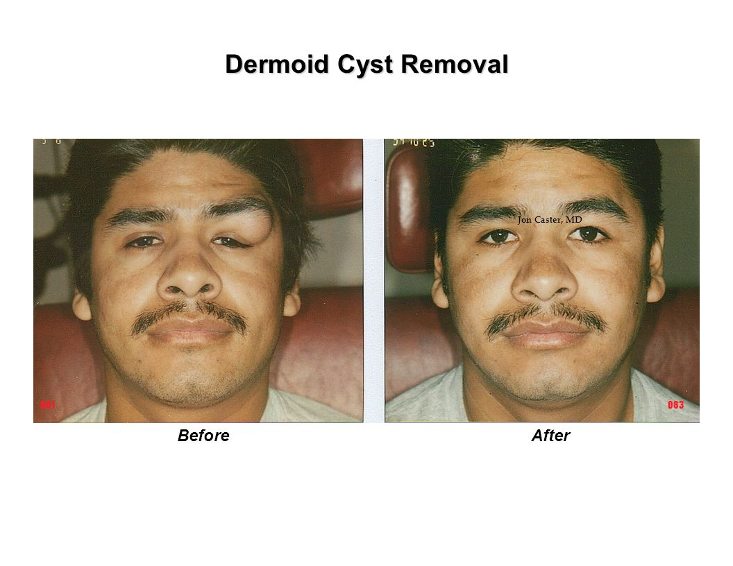 Dermoid Cyst Removal Jon Caster, MD 081 083 Before After