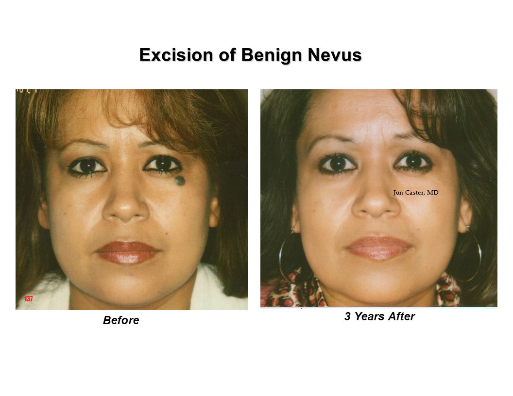 Excision of Benign Nevus