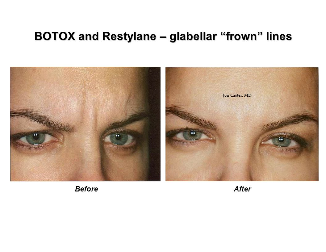 BOTOX and Restylane – glabellar frown lines