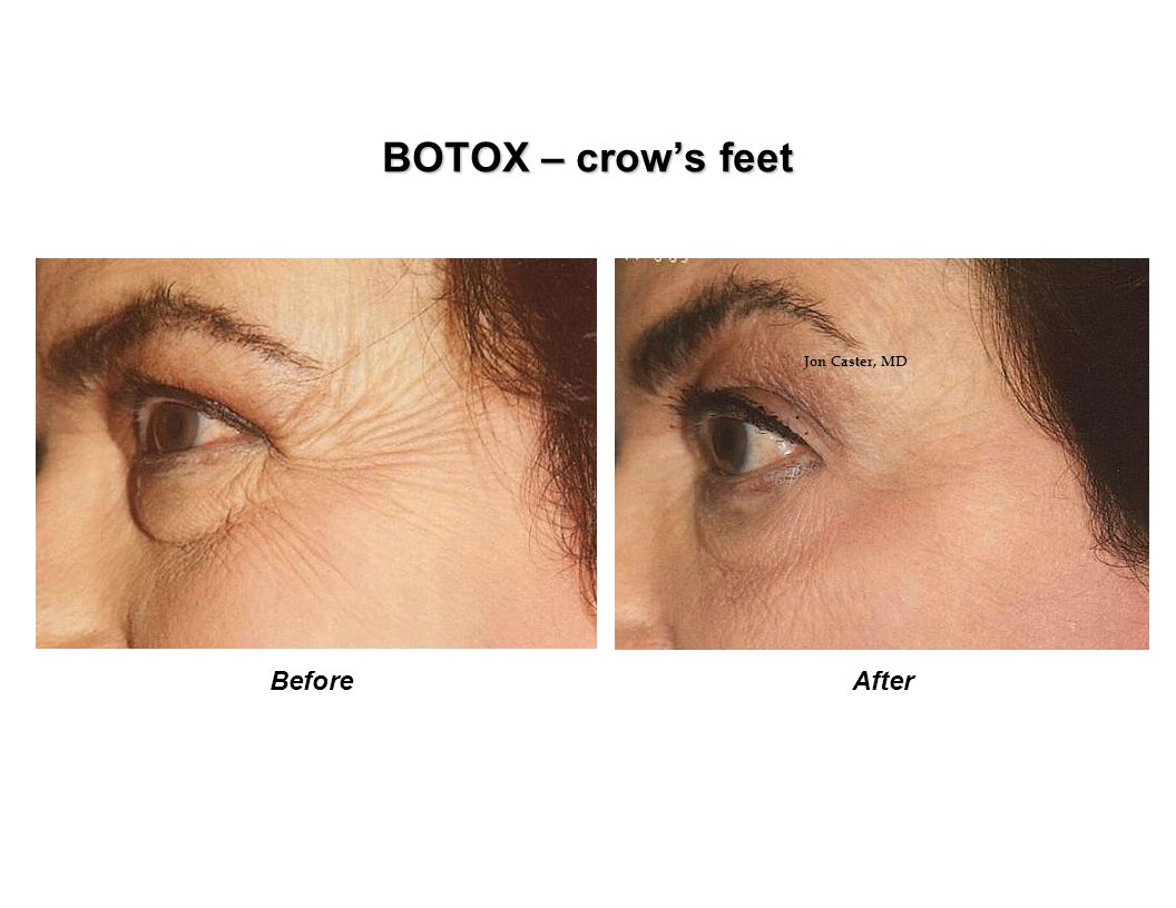 BOTOX – crow's feet Jon Caster, MD Before After