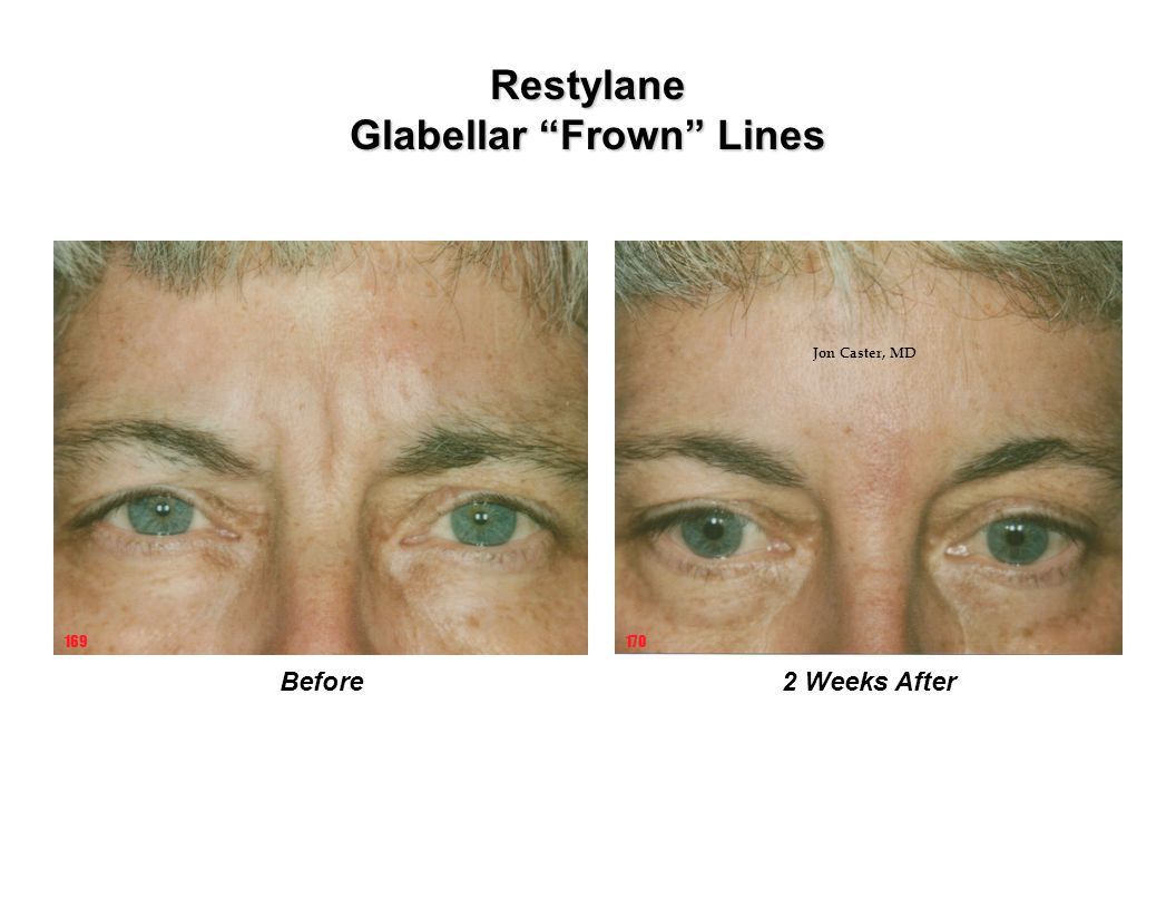 Glabellar Frown Lines