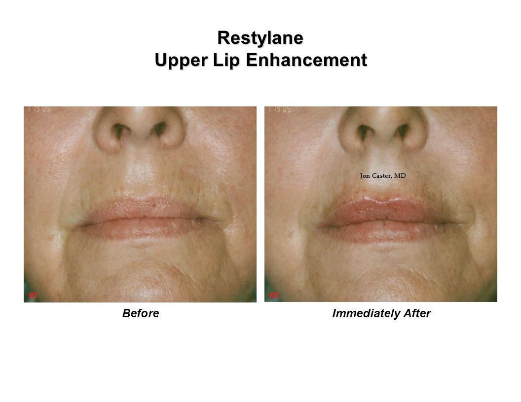 Restylane Upper Lip Enhancement