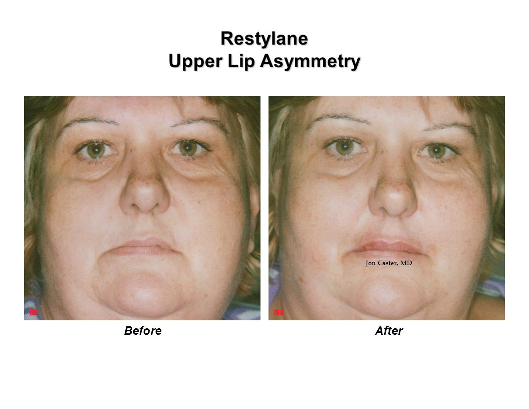 Restylane Upper Lip Asymmetry