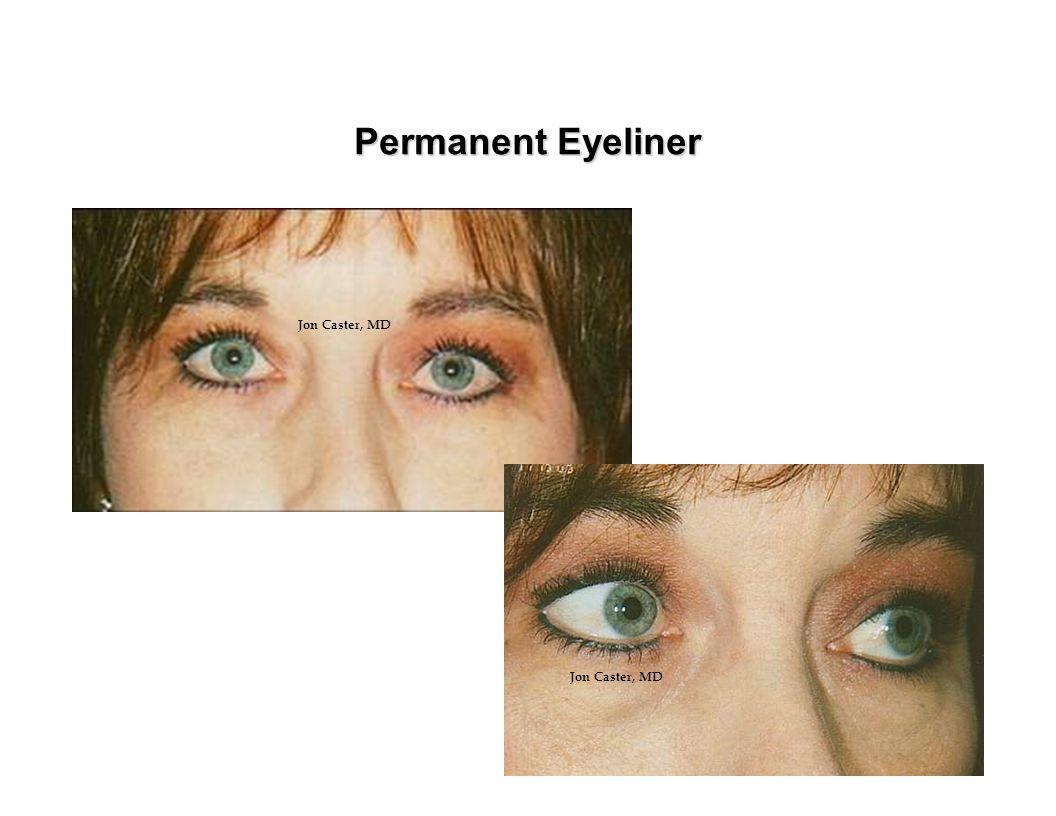 Permanent Eyeliner Jon Caster, MD Jon Caster, MD