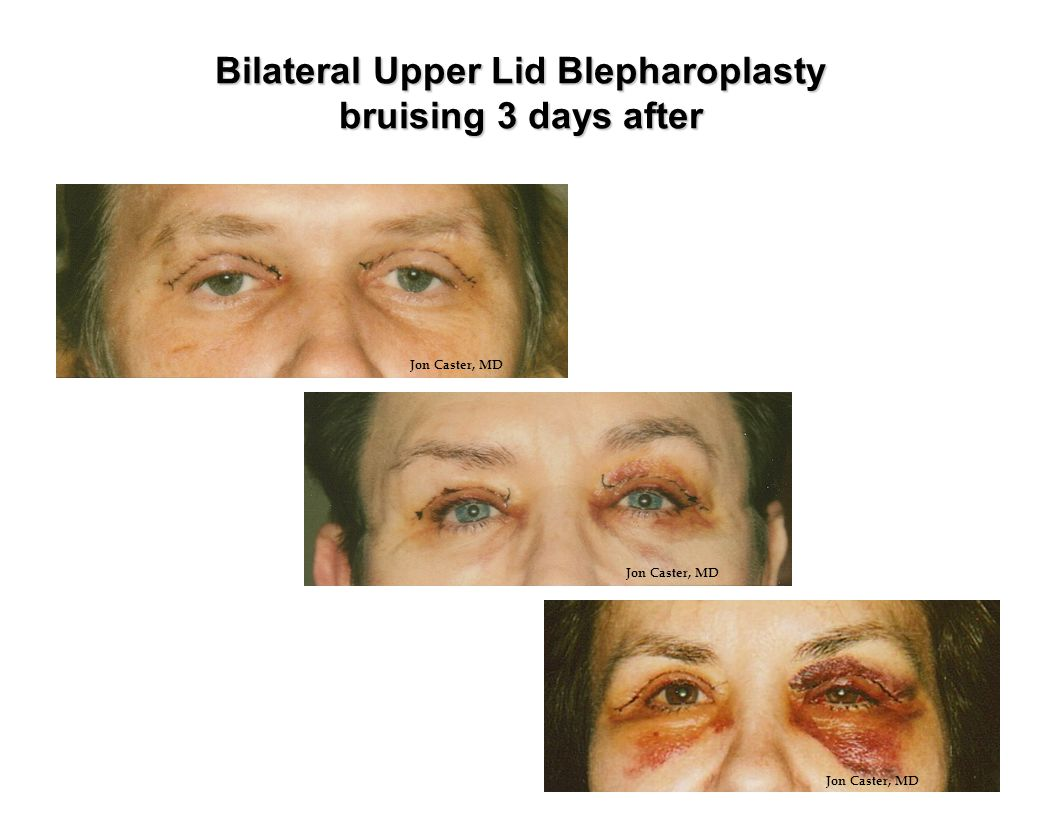 Bilateral Upper Lid Blepharoplasty bruising 3 days after
